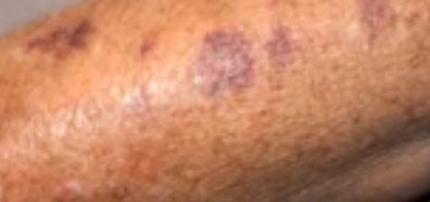 Do red spots on skin not itchy require medical attention These spots are unsightly on the skin and they create a lot of discomforts Get more insight into the causes