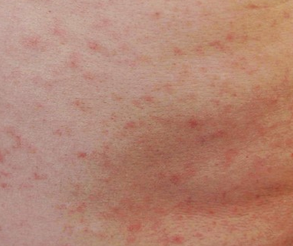 Rash bumps anus hiv