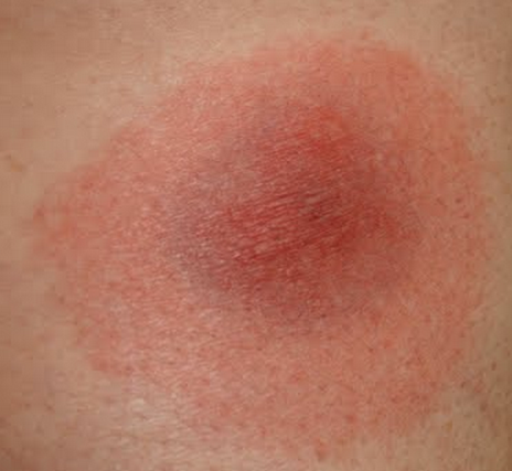 Lyme Disease Rash - Pictures, Symptoms, Causes, Treatment