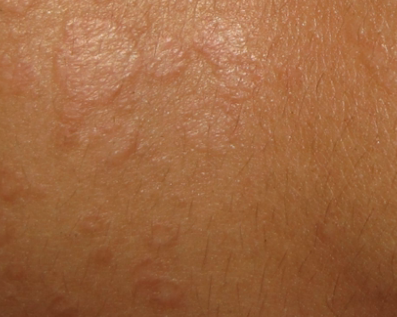 Common Hyperpigmentation Disorders in Adults: Part II ...