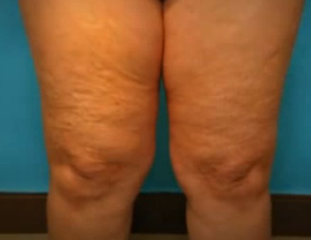 How To Get Rid Of Cellulite On Thighs Legs Naturally