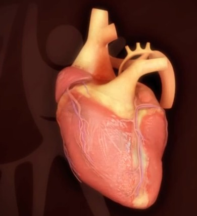 Hypoplastic Left Heart Syndrome Life Expectancy