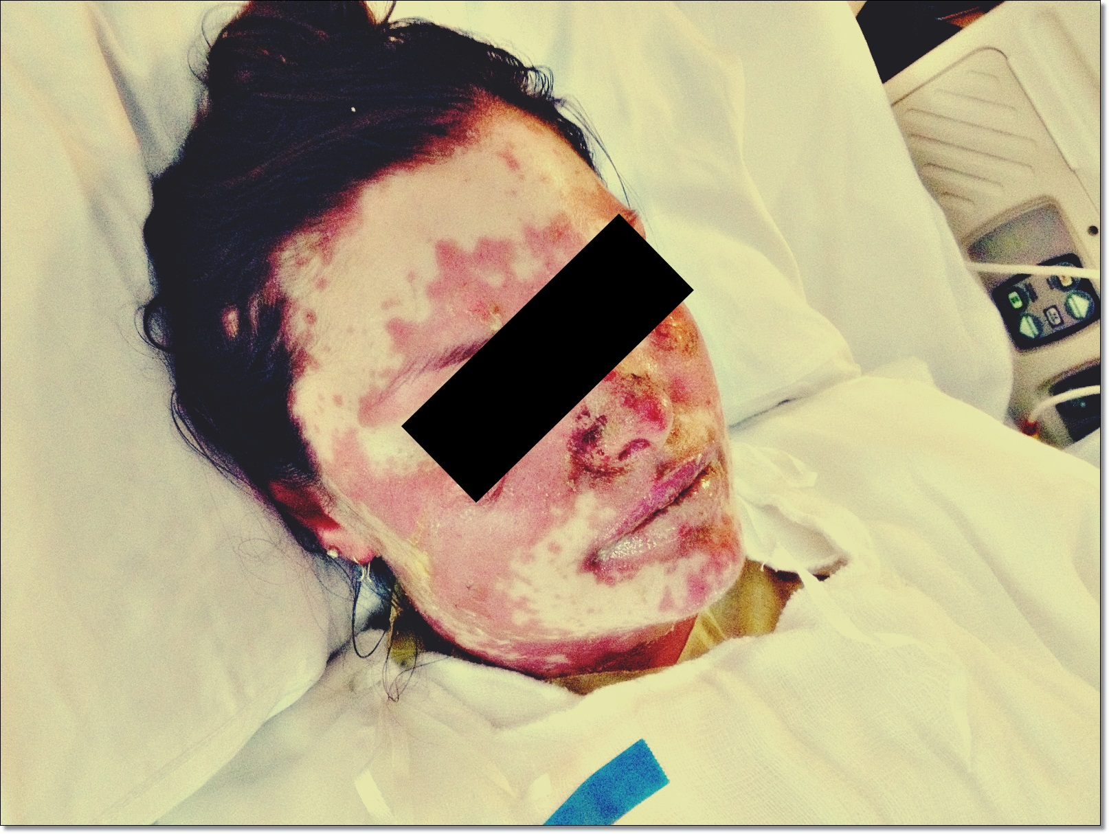 stevens-johnson-syndrome-rash-images