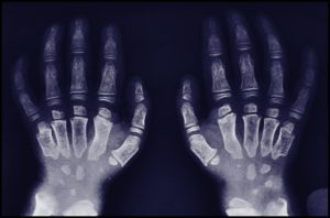 morquiosyndromesignsandsymptoms  medical treasure